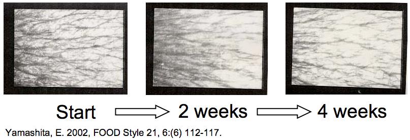 พบว่าริ้วรอยลดลงและเห็นชัดที่สัปดาห์ที่ 4 เป็นต้นไป